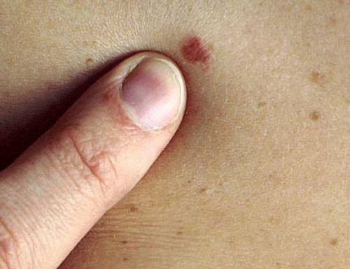 Perché il rischio di morte per melanoma aumenta dopo la perdita del coniuge o del partner?